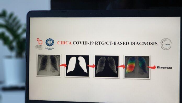 Stworzone w Polsce technologie rozpoznają koronawirusa na zdjęciu rentgenowskim czy tomografii komputerowej